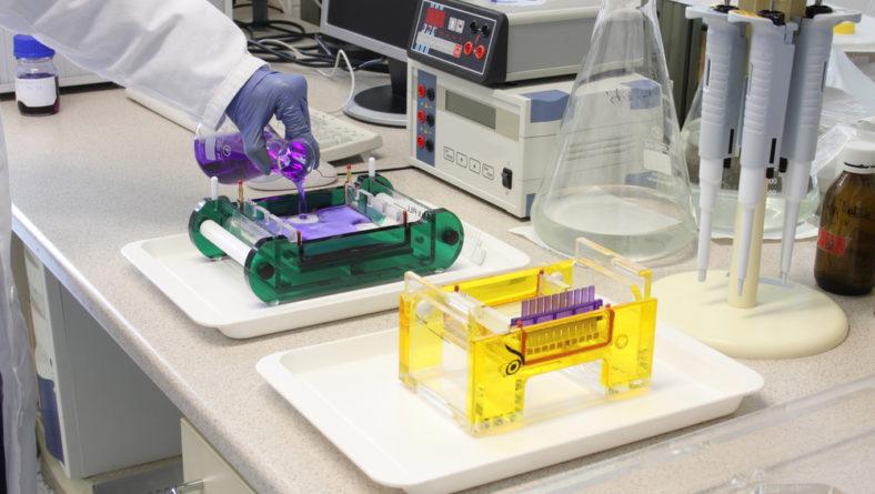 Los métodos electroforéticos